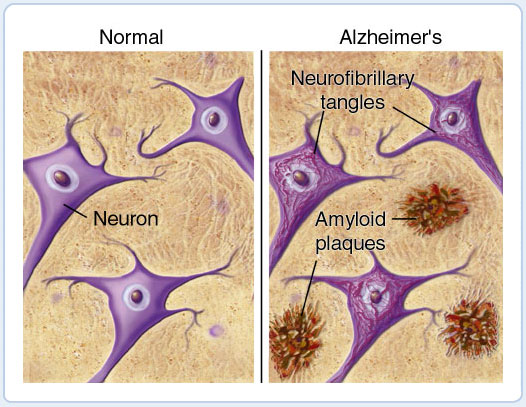 alzheimers-plaques